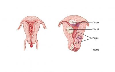 Abnormal Uterine Bleeding (AUB)